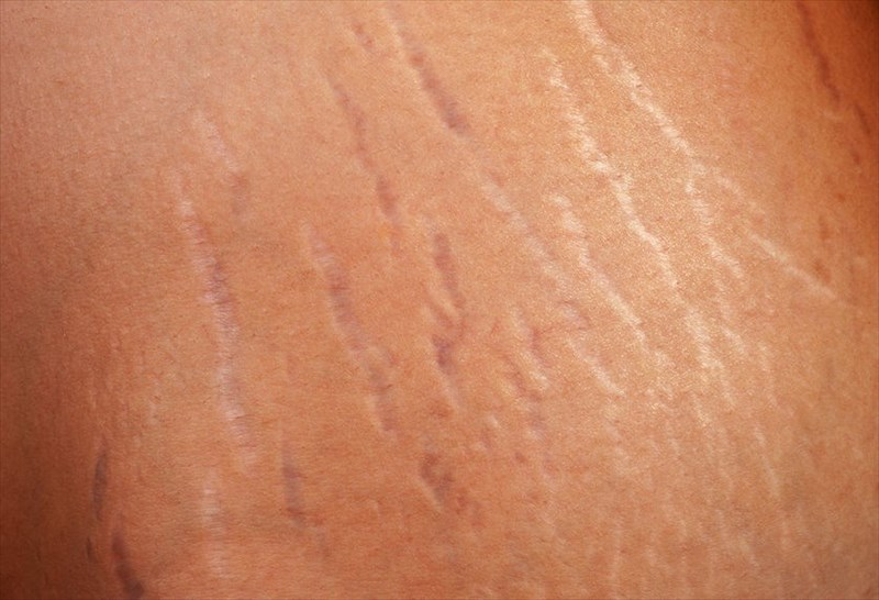 Creams For Stretch Marks Removal